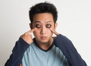 Появление темных кругов под глазами у мужчин