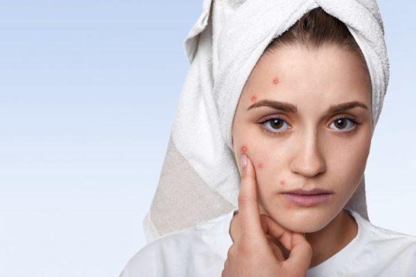 Протирать лицо хлоргексидином после чистки лица 25