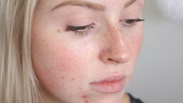 Протирать лицо хлоргексидином после чистки лица 24